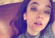 matilda de angelis acne instagram